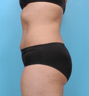 Manhattan liposuction after 8